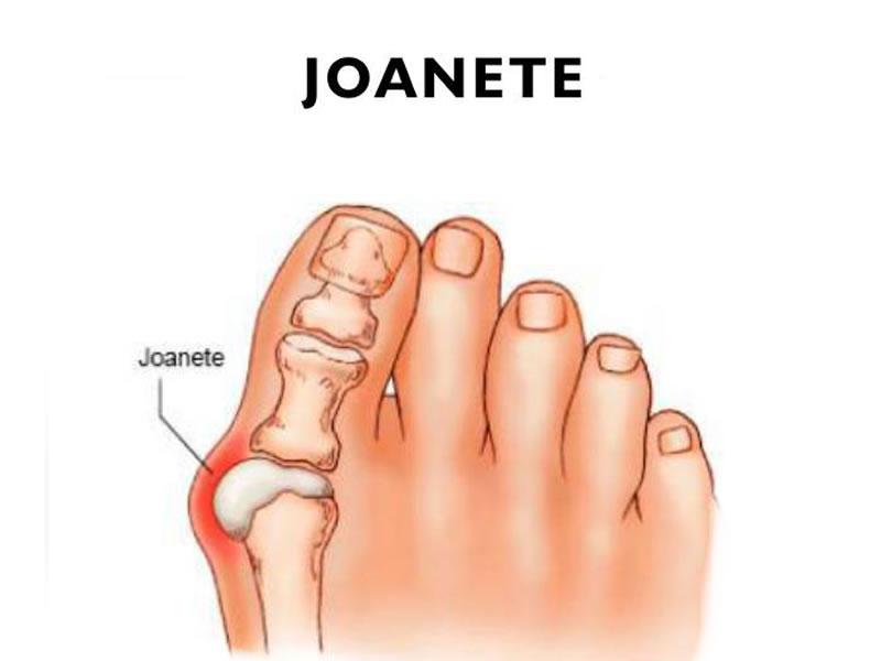 Joanete tem cura?Conheça a cirurgia de joanete (hálux valgo) e outras opções de tratamento - ALFENAS HOJE
