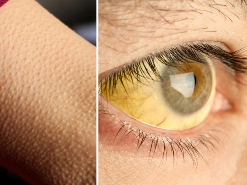 Dráuzio Varella esclarece 7 pontos sobre febre amarela (e todo mundo deveria saber!)