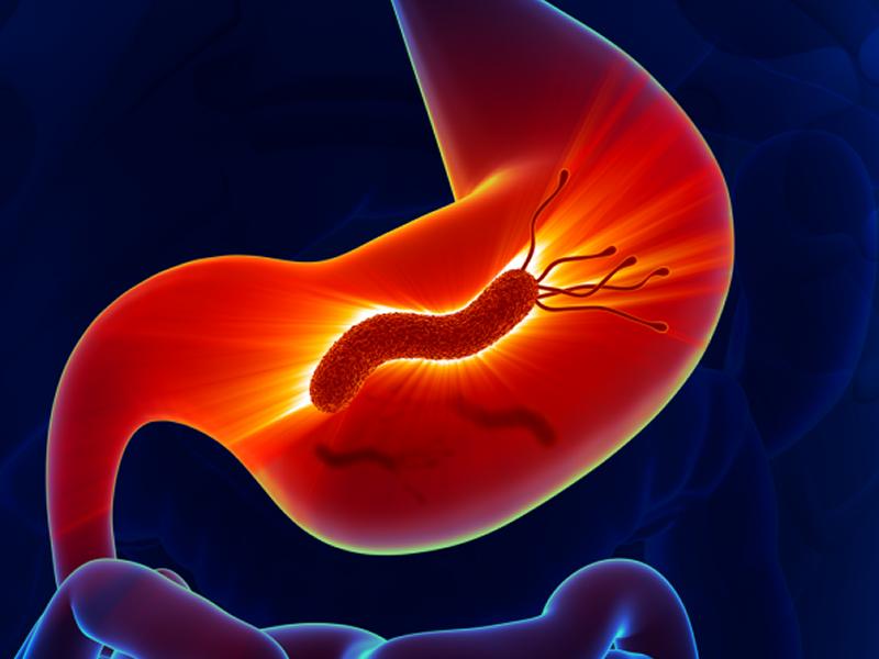 5 alimentos que combatem de verdade a H. pylori, bacteria que inflama estômago